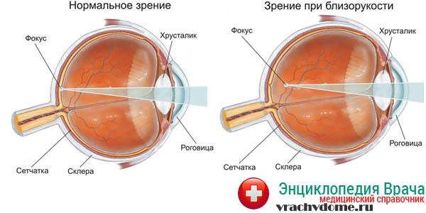 При близорукости нет фокусировки на сетчатке глаза