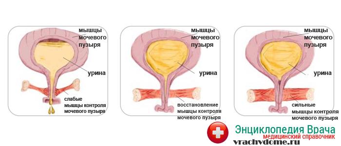 фото правильного положения матки и мышц влогалища