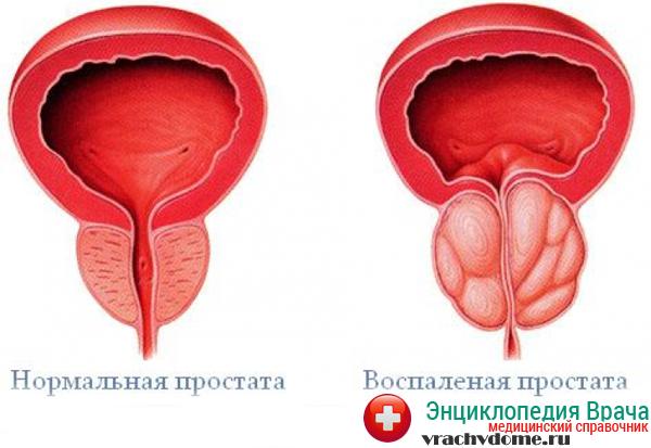 Причины симптомы и лечение застойного (конгестивного) простатита