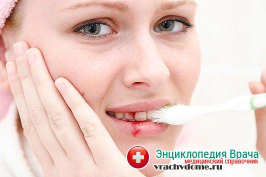 Острая форма гингивита сопровождается кровоточивостью десен