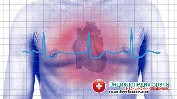 Развивается застойная сердечная недостаточность в несколько этапов, постепенно все больше нарушая кровообращение и работу внутренних органов