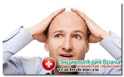 Симптомы алопеции