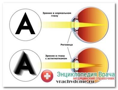 астигматизм