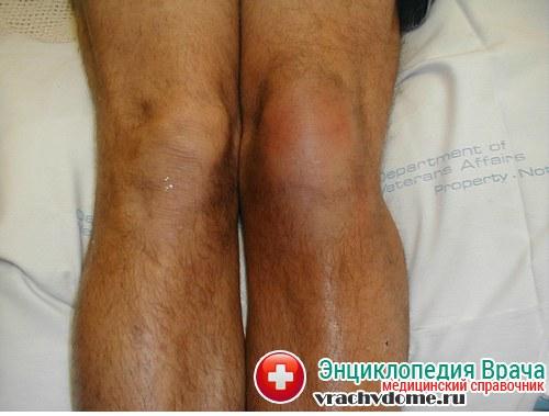 Бурсит - симптомы, причины, диагностика, лечение