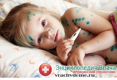 Ветрянка - симптомы, причины лечение у детей