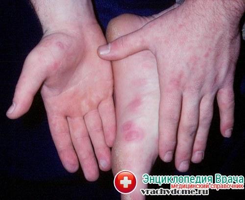 Энтеровирусная иинфекция - симптомы, причины, лечение