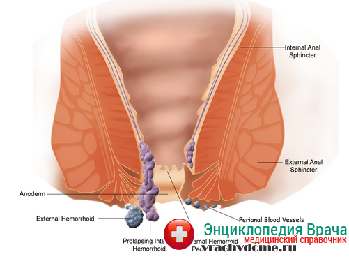 геморрой симптомы
