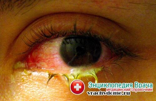 демодекоз глаза