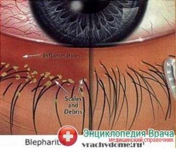 диагностика блефарита