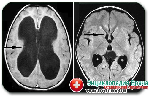 диагностика гидроцефалии