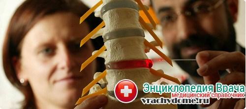 Как отличить защемление нерва от остеохондроза