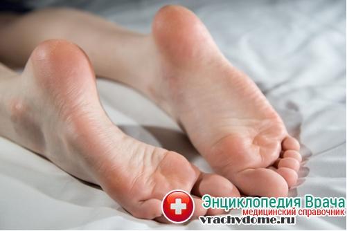 диагностика натоптышей на ногах