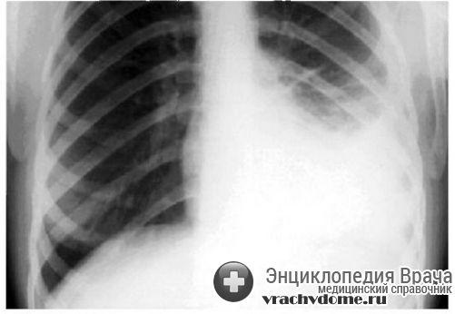 диагностика плеврита
