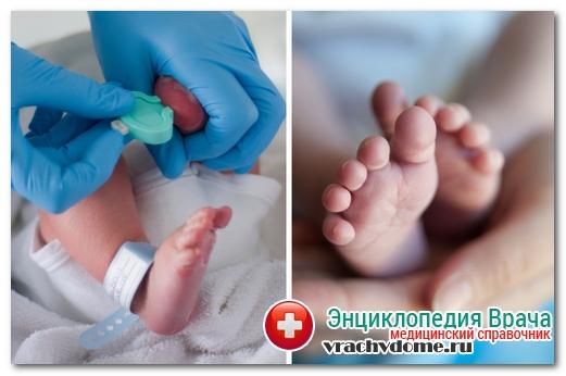 диагностика фенилкетонурии