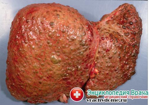 диффузные изменения при гепатозе печени