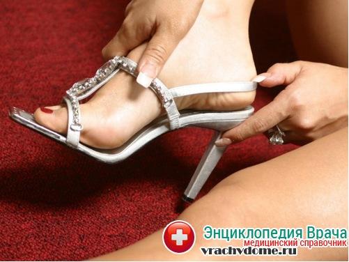 каблуки при растяжении