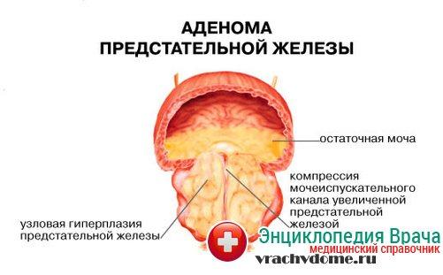 Аденома простаты - симптомы, причины, лечение