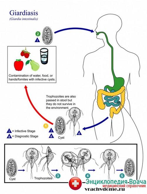 Лямблии - симптомы, причины, лечение
