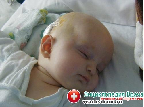 Гидроцефалия причины возникновения у новорожденных