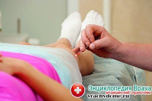 лечение тромбофлебита