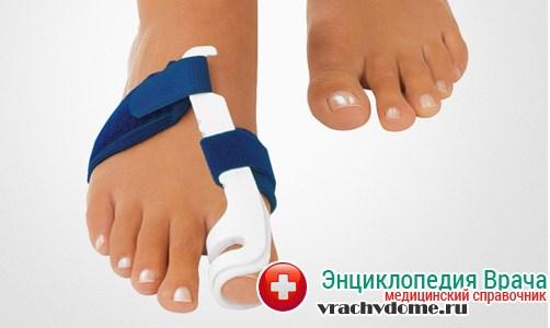 лечение шишек на ноге