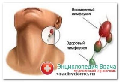 Симптомы лимфоденита
