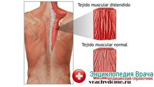 миозит мышц схема