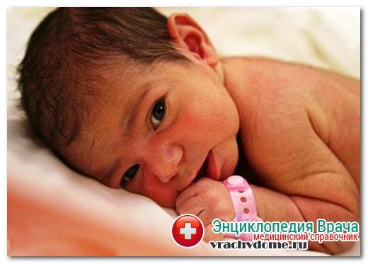 новорожденый фенилкетонури