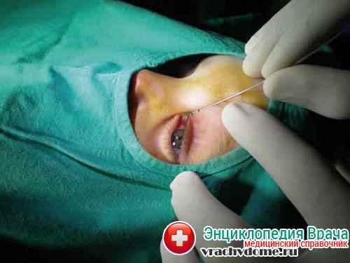 операция при дакриоцисте