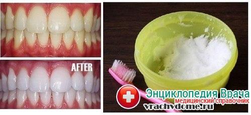 отбеливанеи зубов в домашних условиях