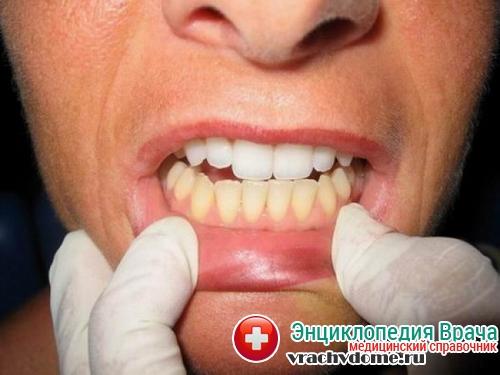 отбеливанеи зубов отзыв
