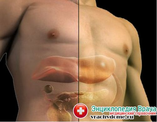 Гепатоз печени что это такое диета
