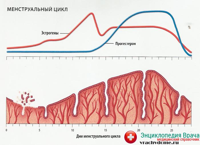 Нарушение менструального цикла может быть признаком кисты яичника