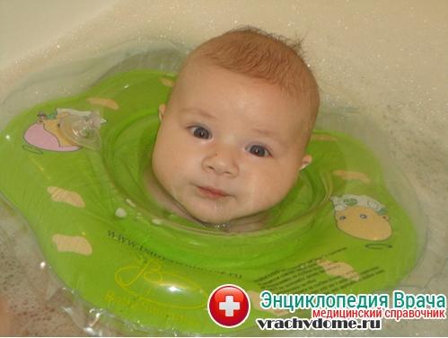 вода для лечения пупочной грыжи