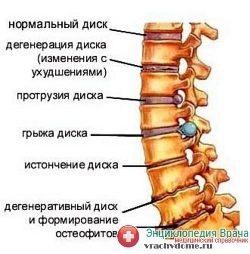 Протрузия межпозвоночного диска- симптомы, причины, лечение