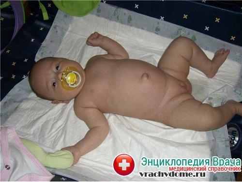 пупочная грыжа у новорожденных фото