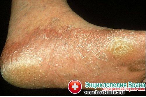 Избавление от грибков на ногах