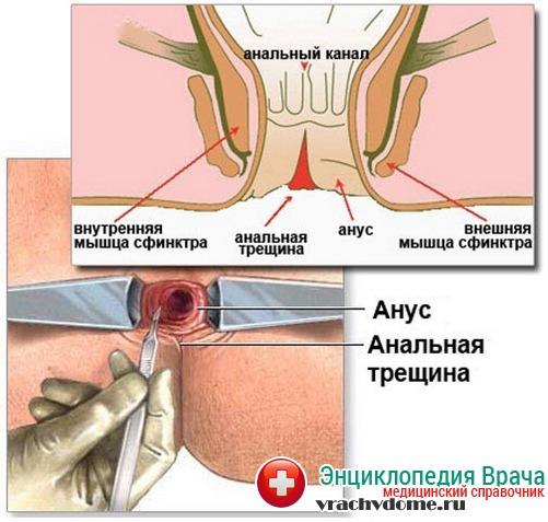 трещина в заднем проходе диагностика