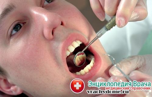 Киста корня зуба - симптомы, причины, лечение