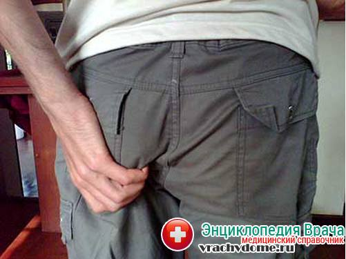 Геморрой на начальной стадии: симптомы, лечение, фото