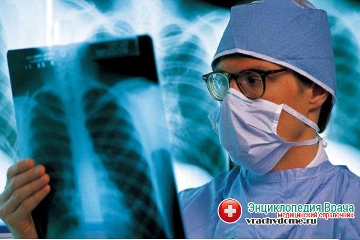 Рентгенологическое исследование - один из методов диагностики болезни