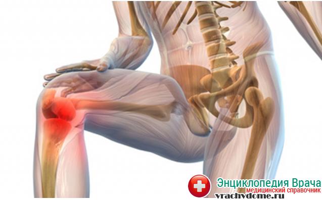 Боль в суставах - один из самых главных признаков болезни