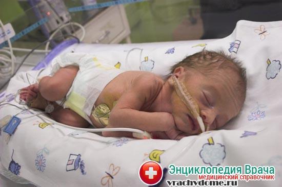Рождение раньше времени - одна из причин повышенного билирубина