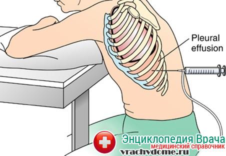 Как правило, дренирование производится в области второго межреберья грудной клетки