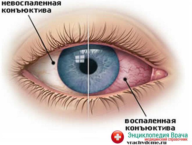 Увеит сопровождается сильным воспалением слизистой оболочки глаза, постоянным слезотечением, болезненной реакцией на яркий свет