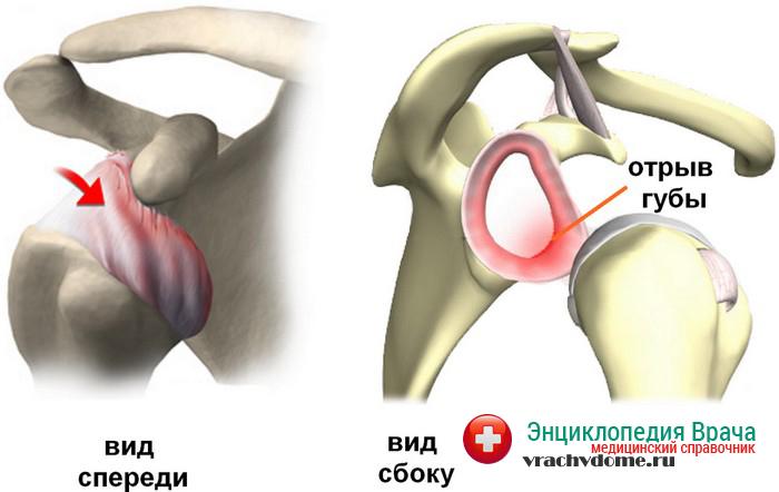Травма плечевого сустава - одна из основных причин болезни