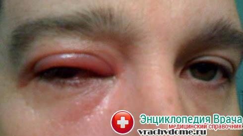 Аллергический блефарит