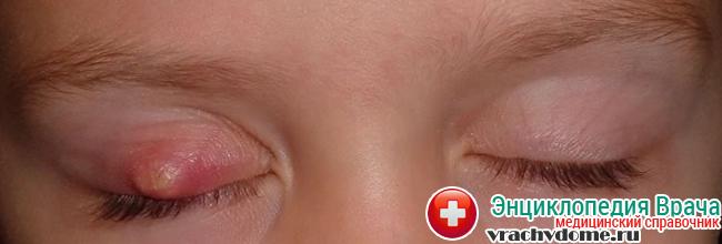 Ячмень у ребенка - воспаление железы на веке