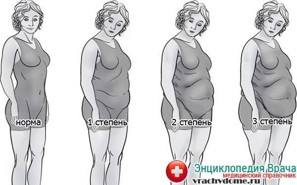 Стадии ожирения