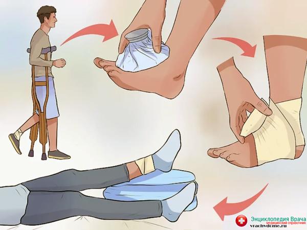растяжение ноги уход за собой